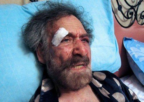 遭到毒打的费尔萨特正在医院疗伤